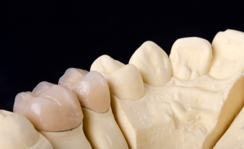 detail dental wax model